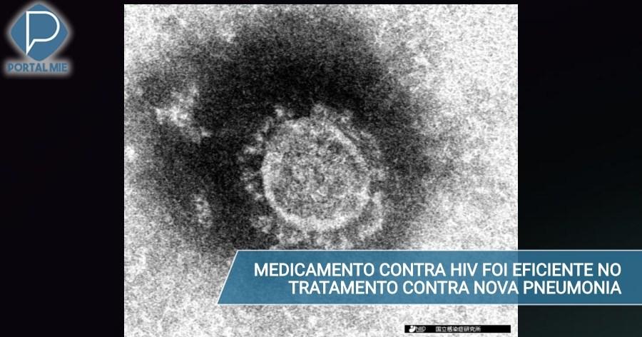 &nbspJapón usó medicamento contra HIV en paciente con neumonía causada por el nuevo coronavirus